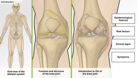 Understanding Osteoarthritis of the Knee